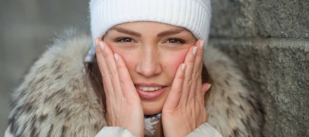 Woman touching her red cheeks